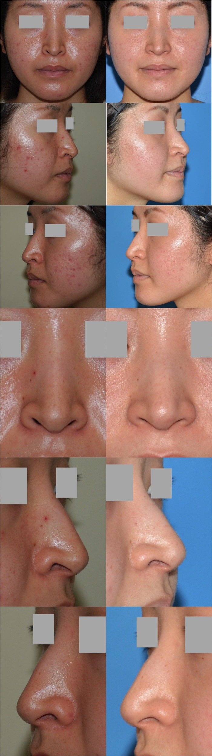 鼻孔縁下降術 術後6ヶ月