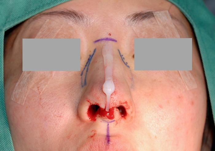 鼻プロ抜去・鼻骨骨切り術・鼻中隔延長術 術後3ヶ月 術中写真