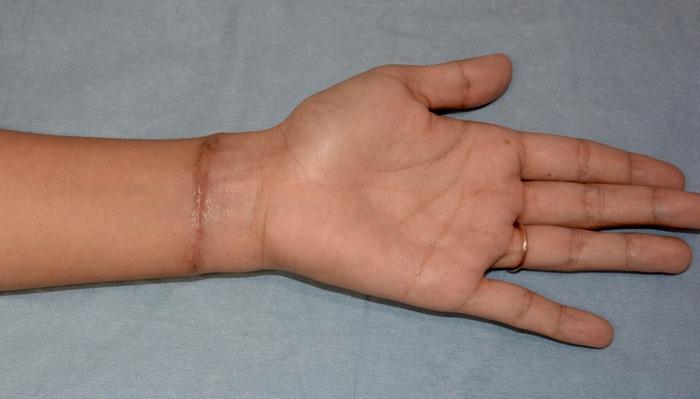 刺青前腕術後1ヶ月