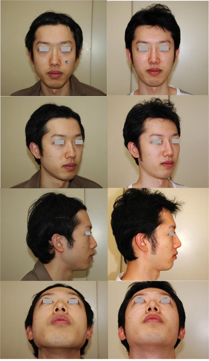 鼻プロテーゼ経過001