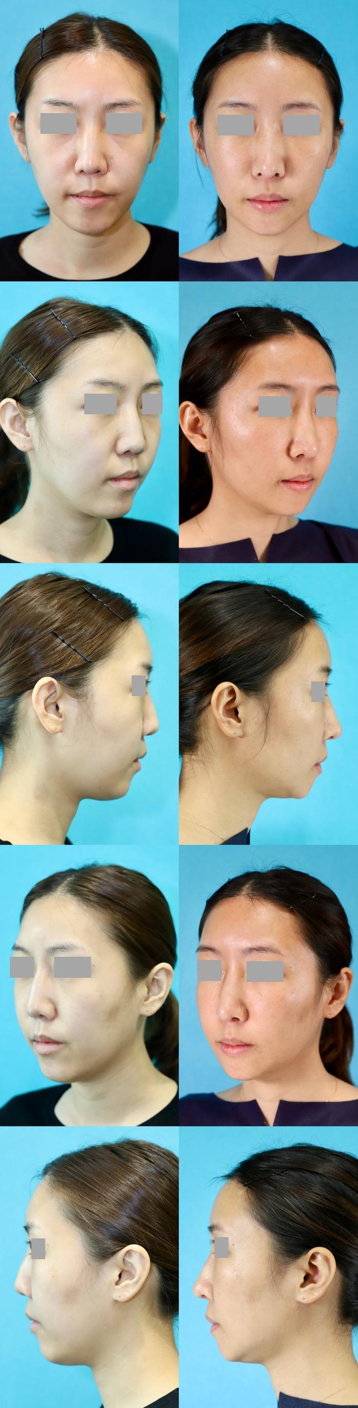 アゴ削り脂肪注入鼻中隔延長術