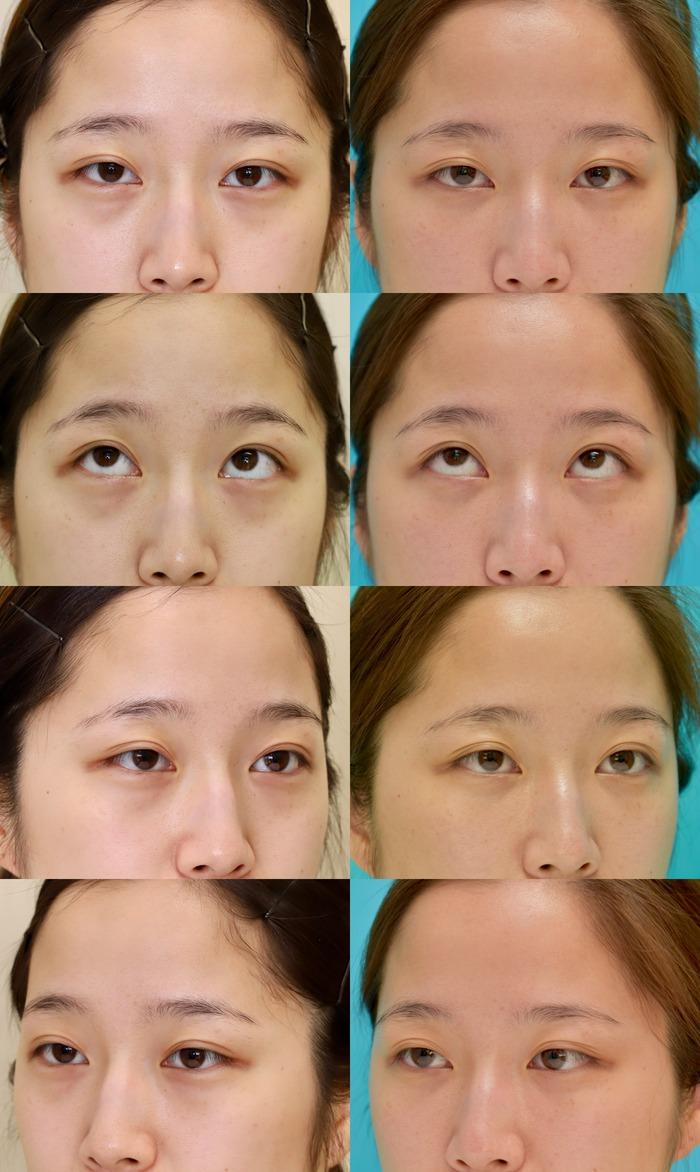 下眼瞼経結膜ハムラ法 術後3ヶ月sm