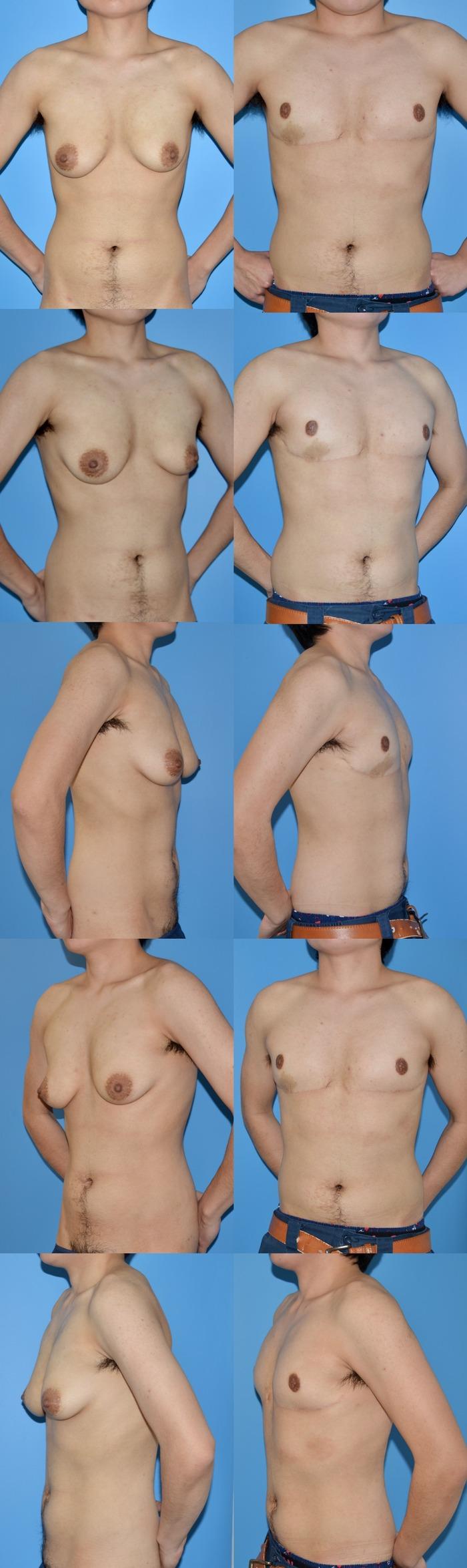 乳房切断 術後9ヶ月