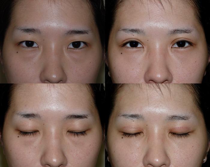 二重切開 目頭切開 下眼瞼軽結膜ハムラ法 術後3ヶ月