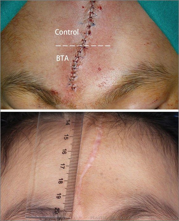 botox-for-facial-scars