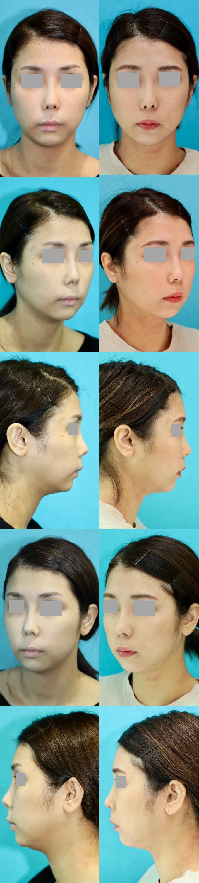 鼻尖移植軟骨除去 軟部組織移植 術後7ヶ月