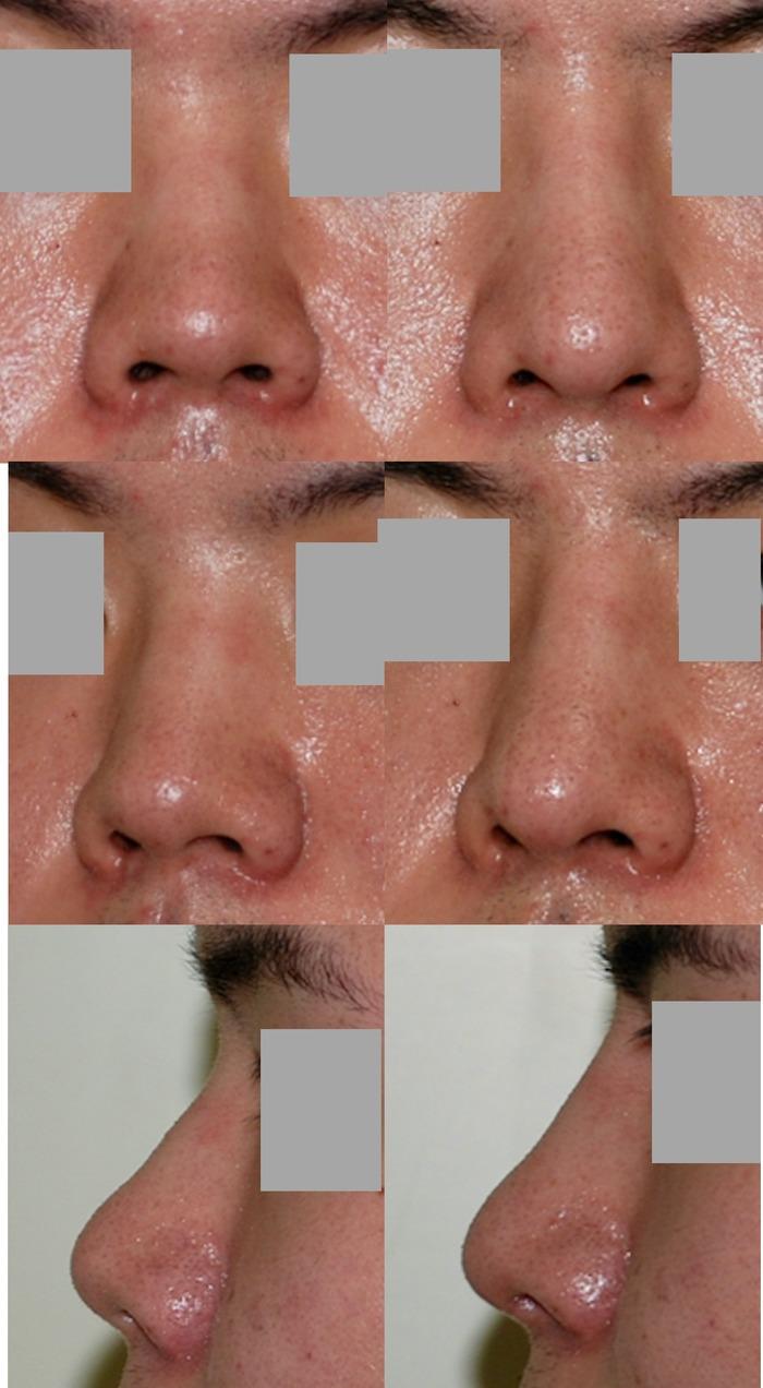 鼻中隔延長 隆鼻術 術後3か月 拡大像