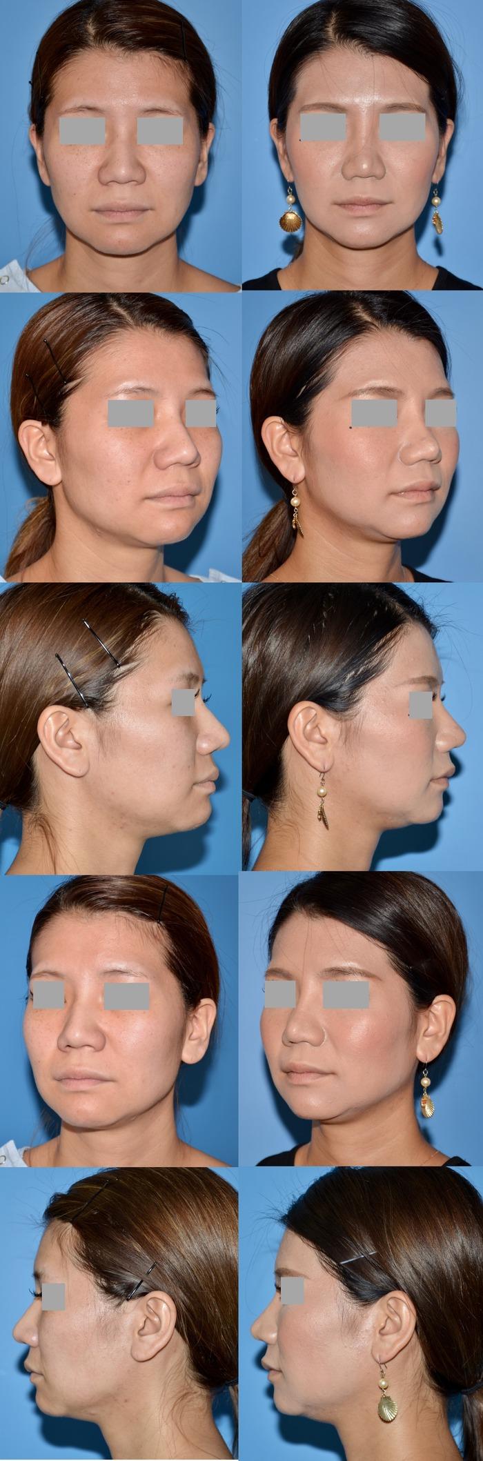 鼻尖縮小術鼻翼縮小術os 術後4ヶ月