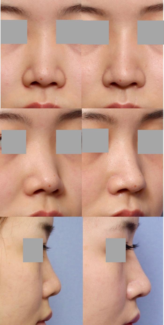 鼻尖縮小術 隆鼻術 術後1ヶ月 拡大