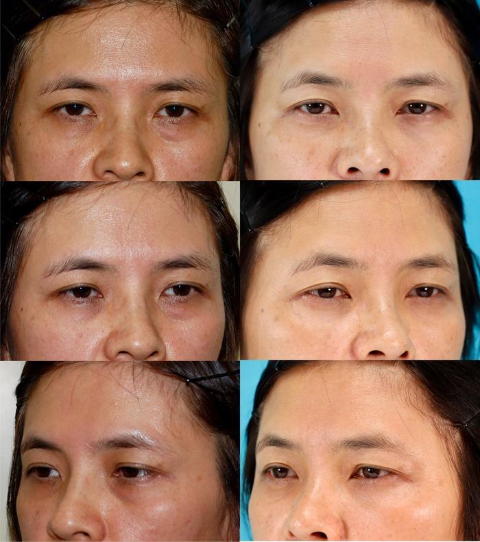 下眼瞼経結膜ハムラ法3年8ヶ月