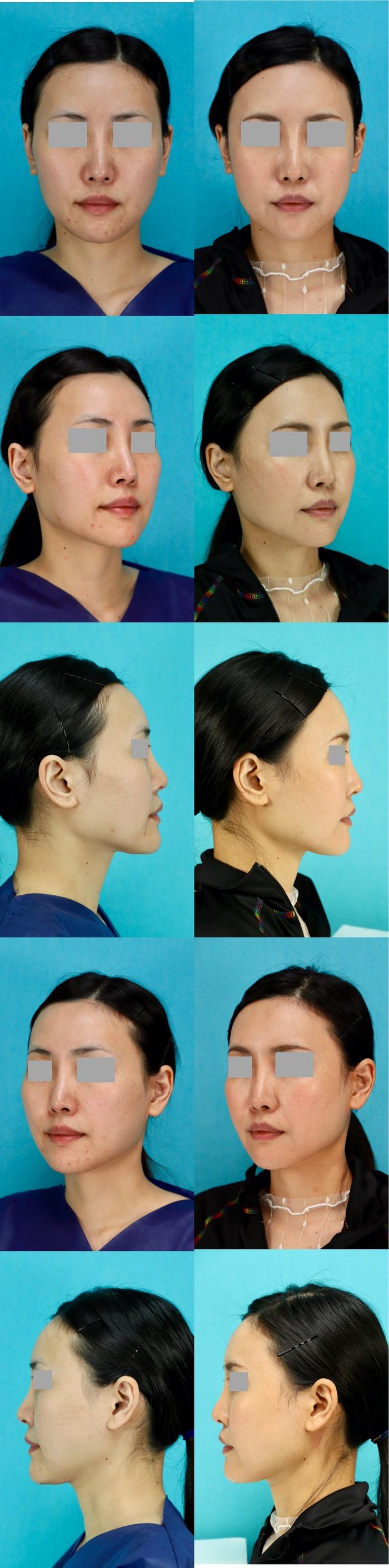 頬骨削り 術後6ヶ月