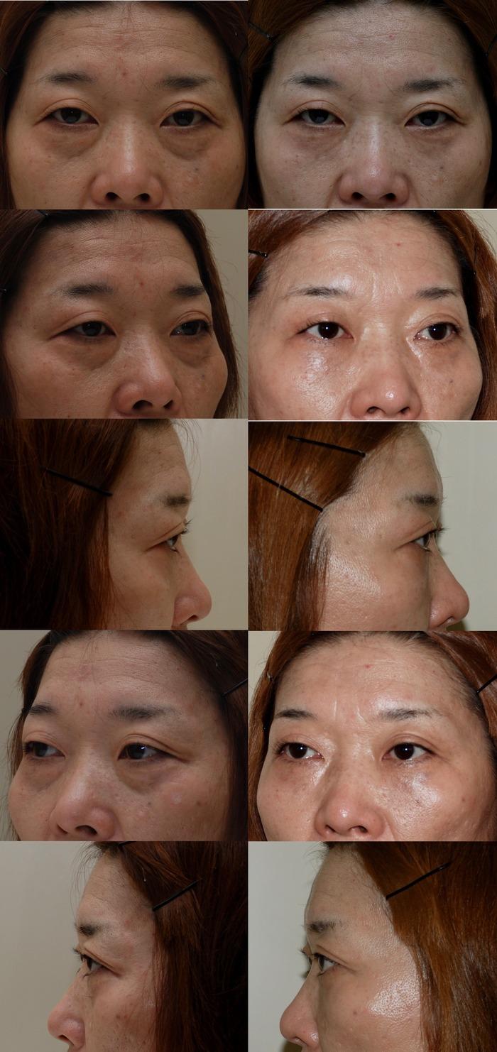 下眼瞼経結膜ハムラ法3ヵ月nk