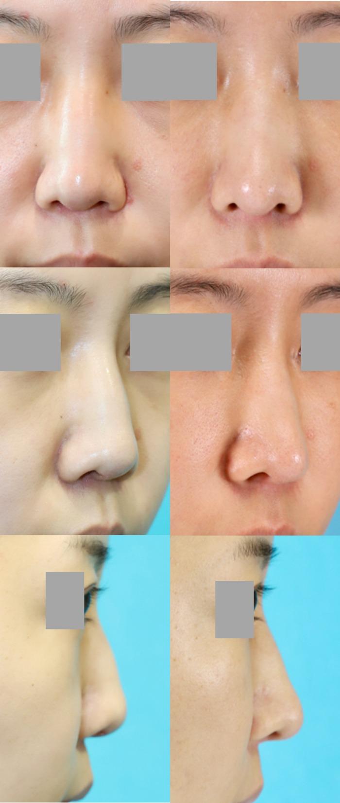 鼻中隔延長術 前額・頬脂肪注入 アゴ削り 拡大