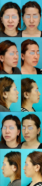 鼻中隔延長術 隆鼻術 術後4ヶ月