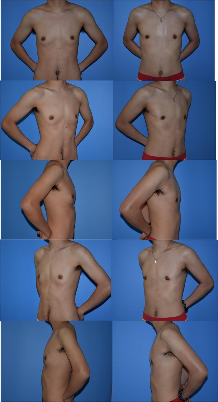 GID 乳房切除術 02