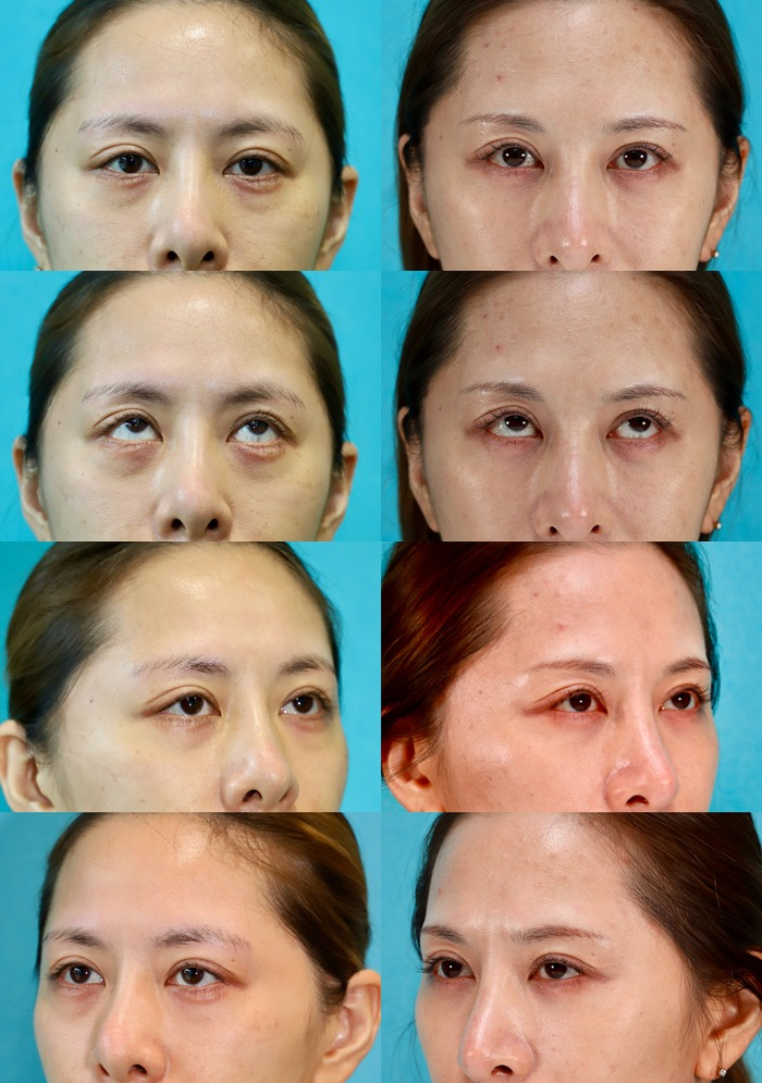 下眼瞼経結膜ハムラ法 術後5ヶ月