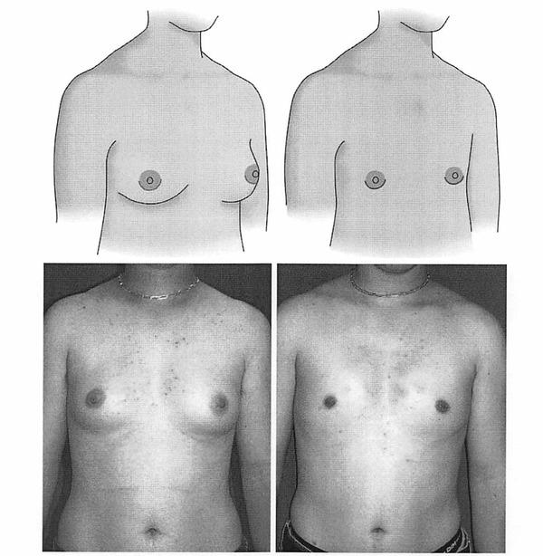 乳腺切除術