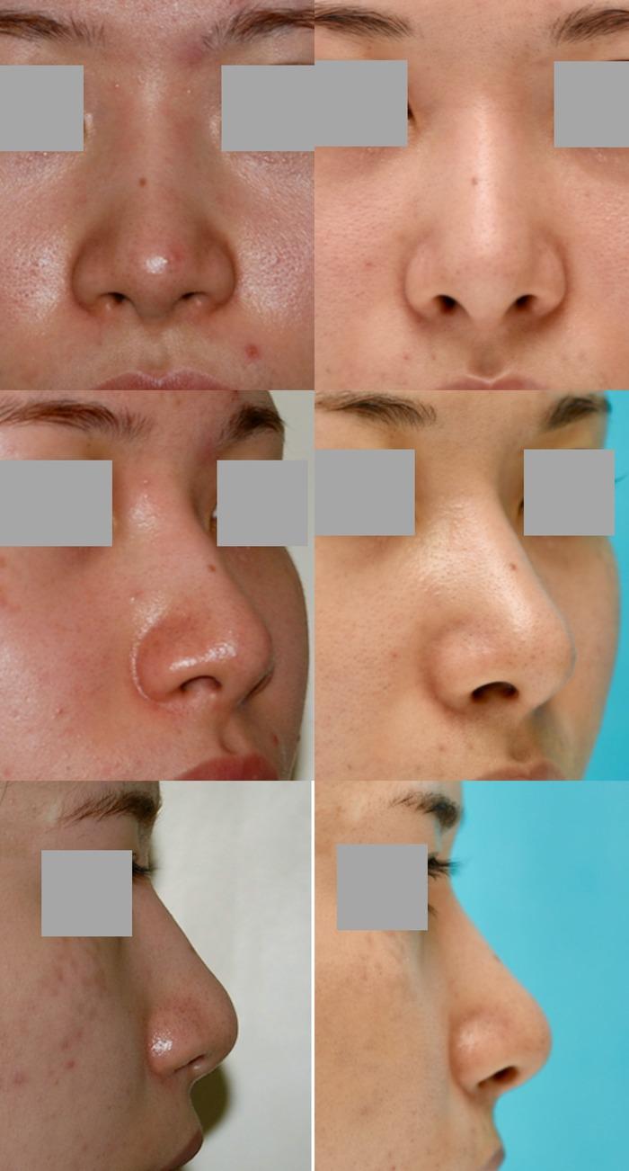 鼻中隔延長術 隆鼻術 術後3か月 拡大