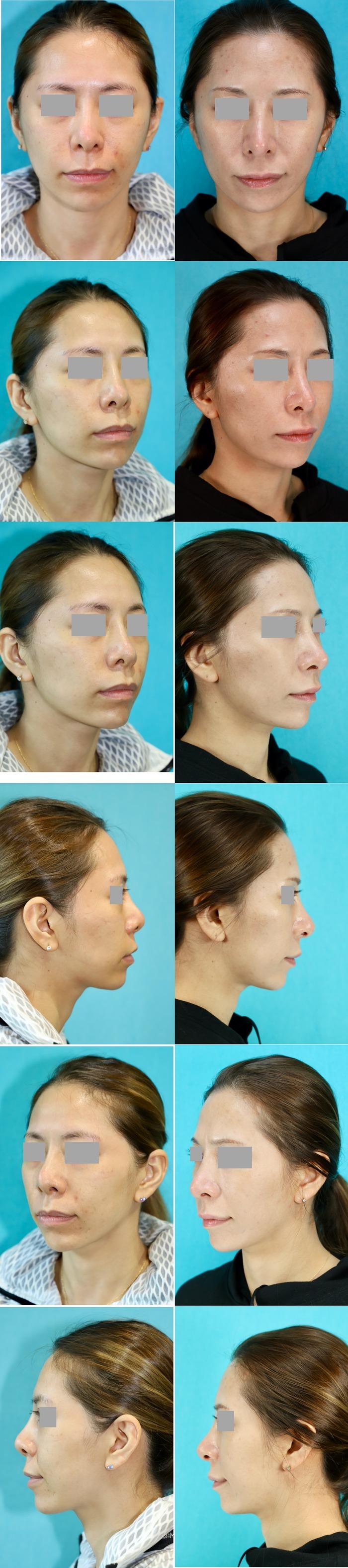 鼻中隔延長術、隆鼻術(プロテーゼ入れ替え)術後5ヶ月