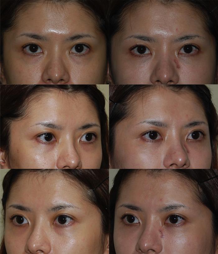 下眼瞼ハムラ法