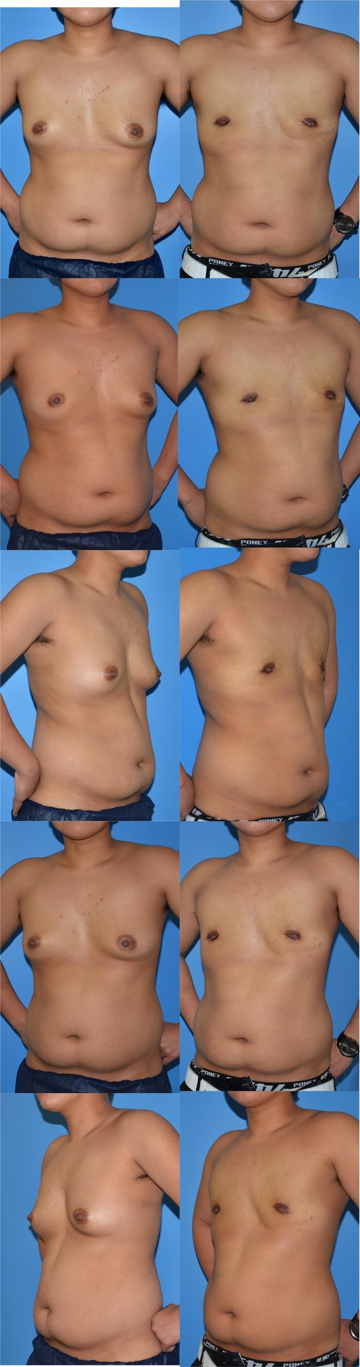 乳腺切除yn 術後3ヶ月