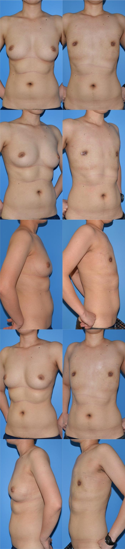 乳腺切除 tm 術後1ヶ月