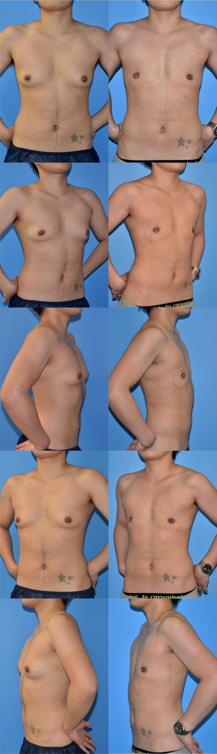 乳腺切除 GID NN 術後1ヶ月