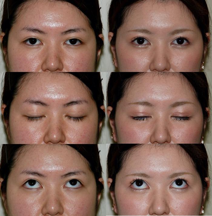 眼瞼下垂症術 術後6か月