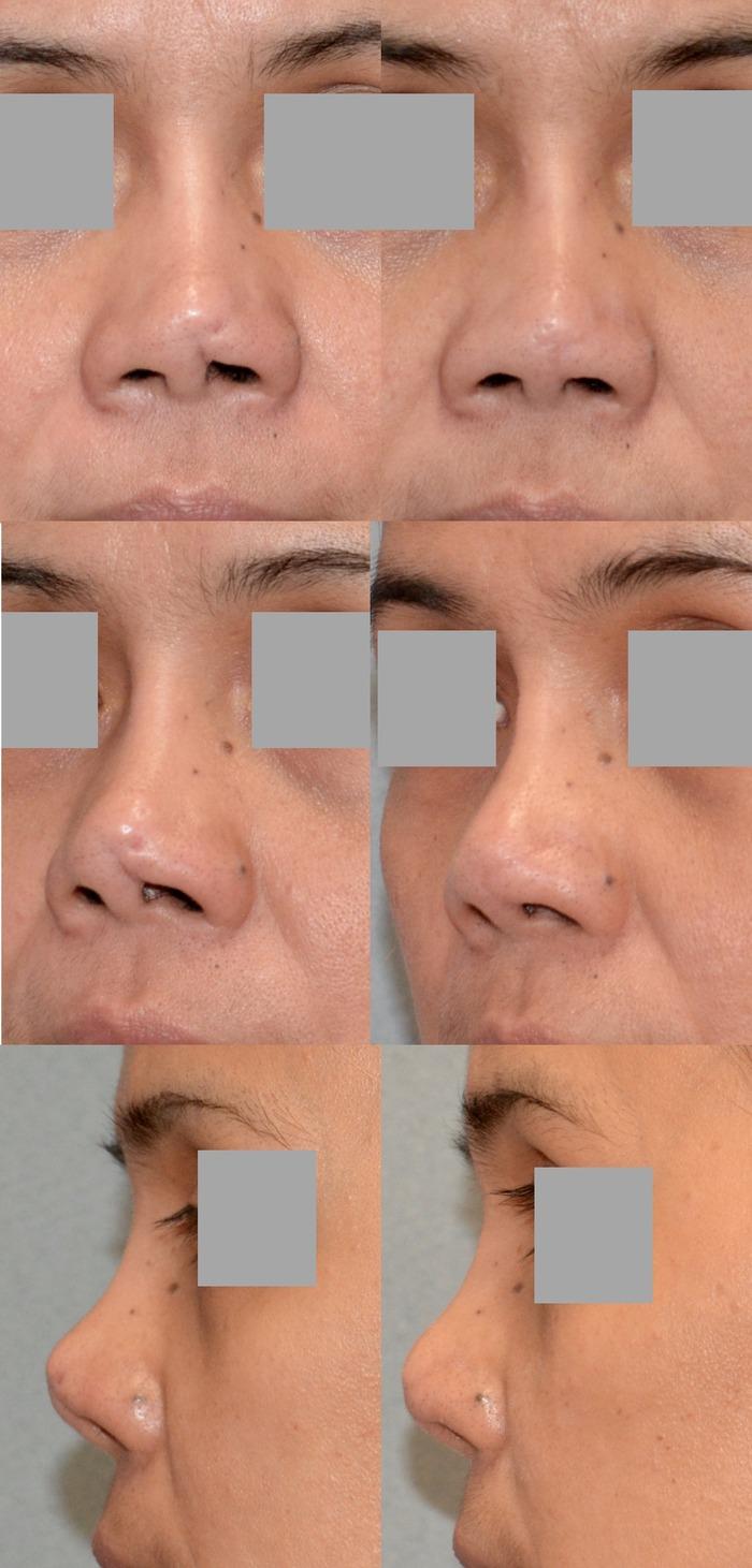 鼻瘢痕修正 術後8ヶ月 拡大
