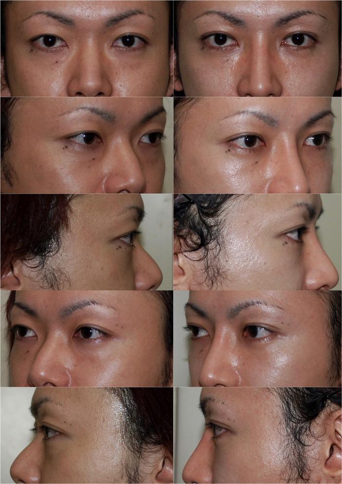 二重埋没法 下眼瞼経結膜ハムラ法