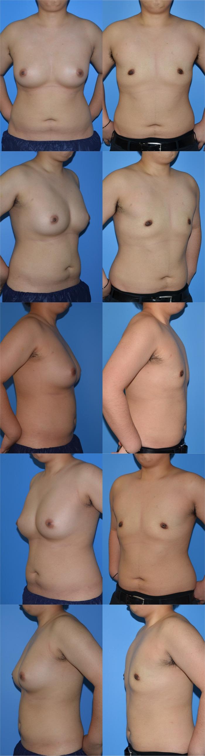 乳腺切除術nh 5ヶ月