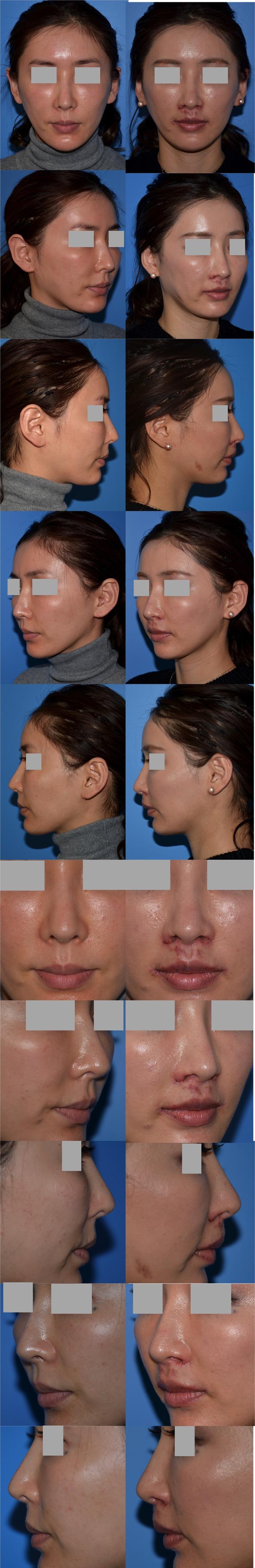 鼻翼挙上 鼻下長短縮術 口角挙上