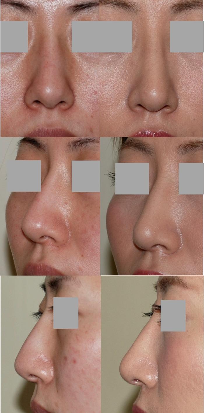 他院鼻プロ抜去・鼻骨骨切り術・鼻中隔延長 術後3ヶ月 拡大