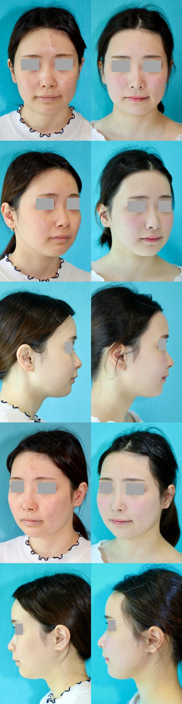 鼻尖縮小術 術後3ヶ月