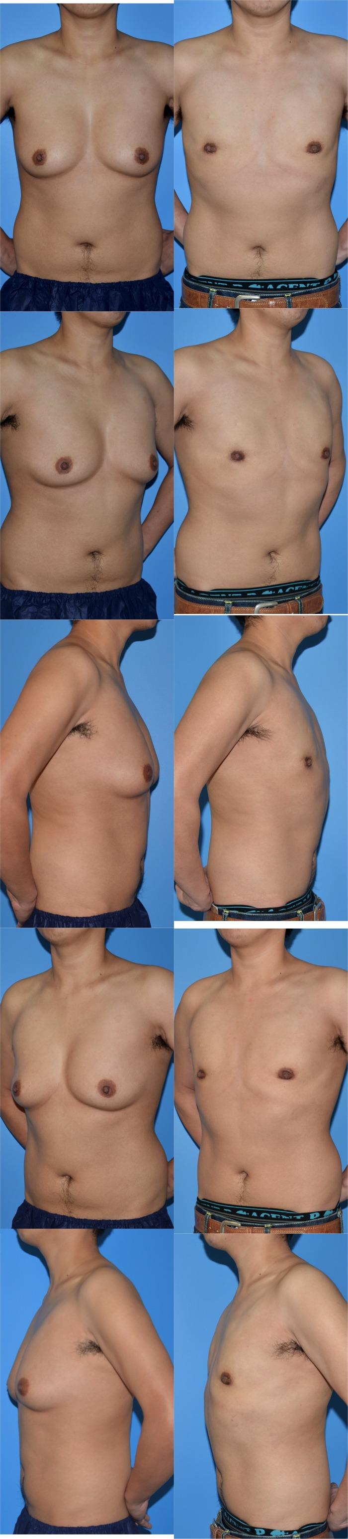 乳腺切除oe 術後3ヶ月