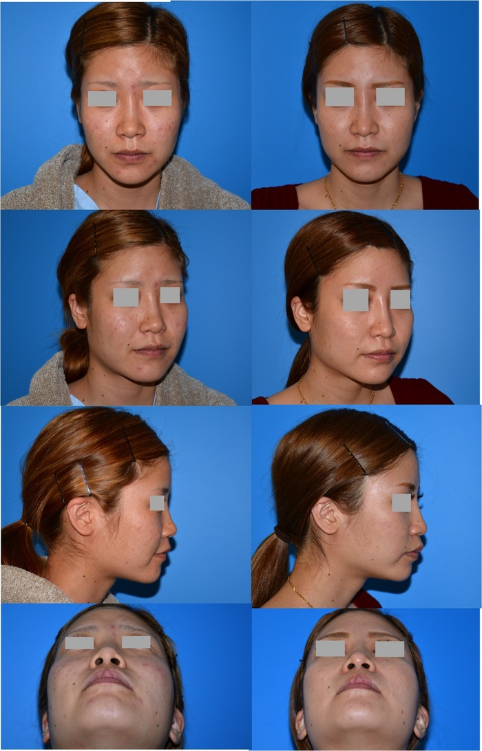鼻プロテーゼ 鼻尖縮小