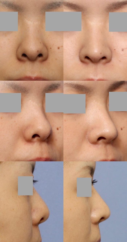 鼻尖縮小術 鼻孔縁下降術 術後1ヶ月拡大