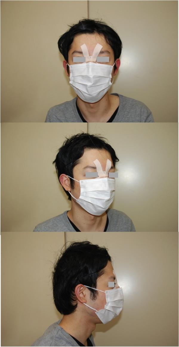 鼻形成術後マスク写真