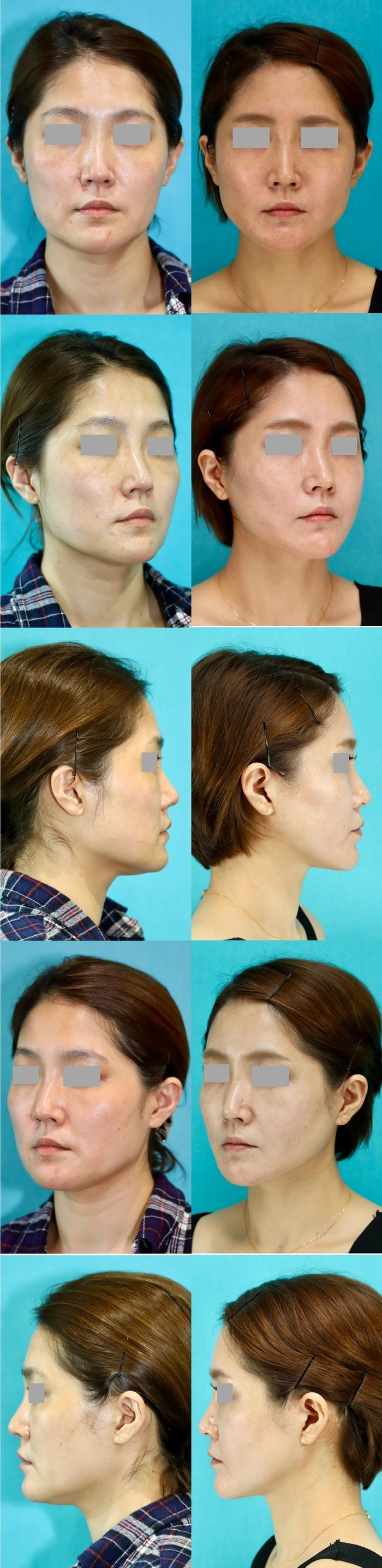 フェイスリフト 頬骨エラ削り 術後14ヶ月
