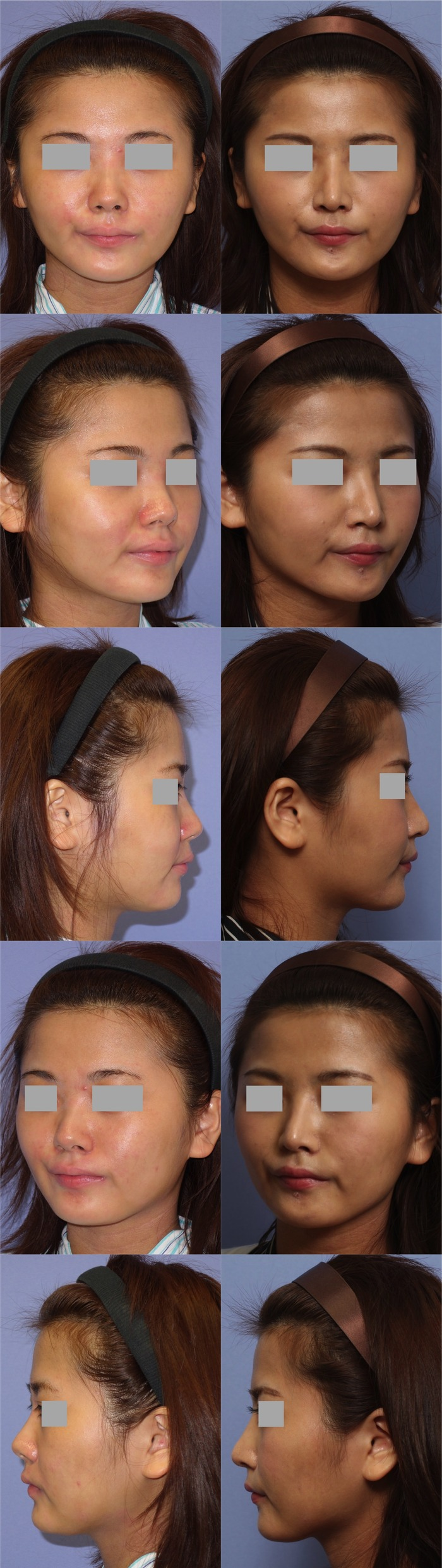 鼻中隔延長術 隆鼻術 1ヶ月