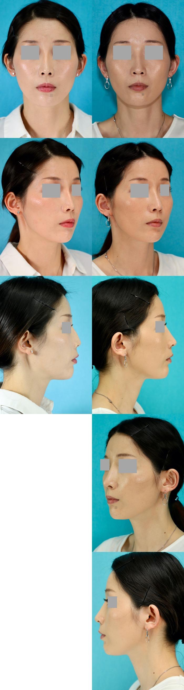 鼻中隔延長術 オーダメイドシリコン 術後8ヶ月