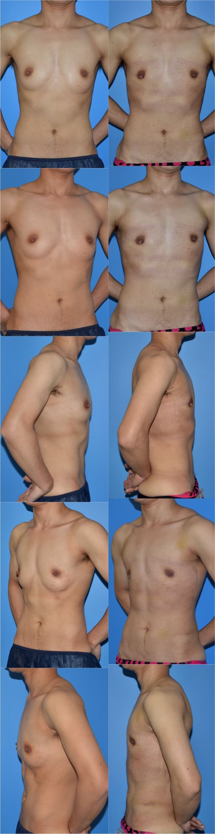 乳腺切除sa 術後1ヶ月