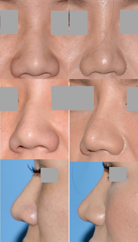 鼻尖縮小術鼻翼縮小術os 術後4ヶ月 拡大像