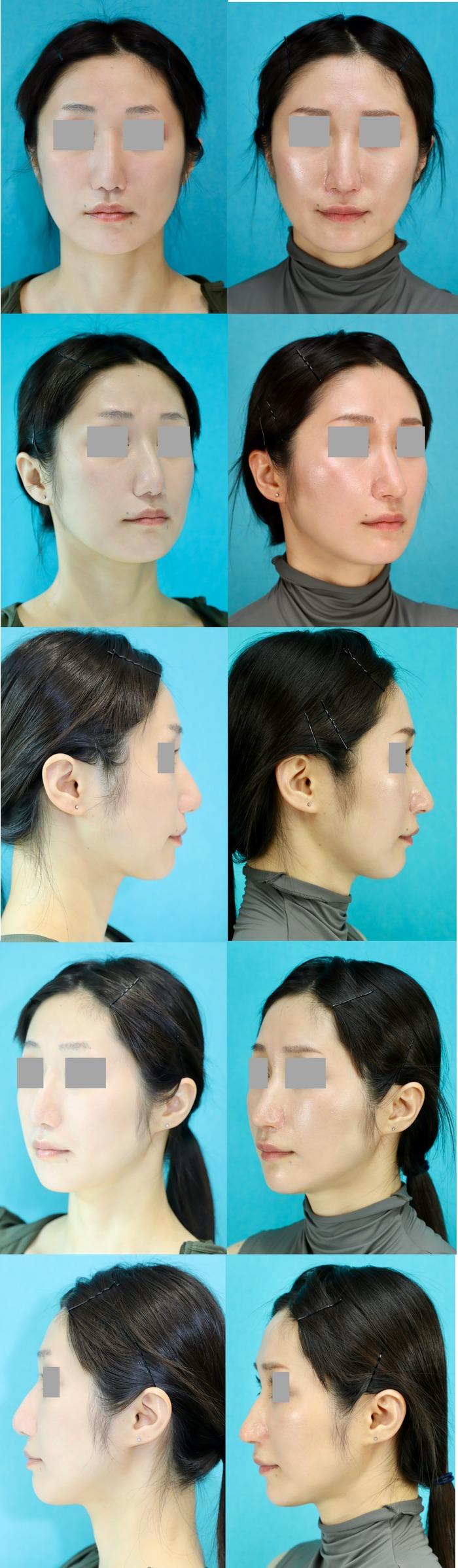 鼻中隔延長術 術後10ヶ月