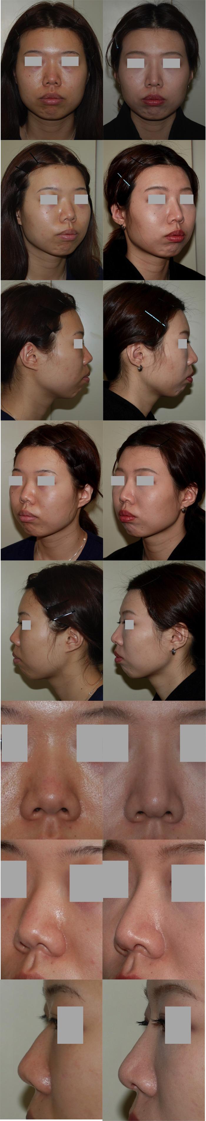 鼻中隔延長術 隆鼻術 術後1ヶ月01