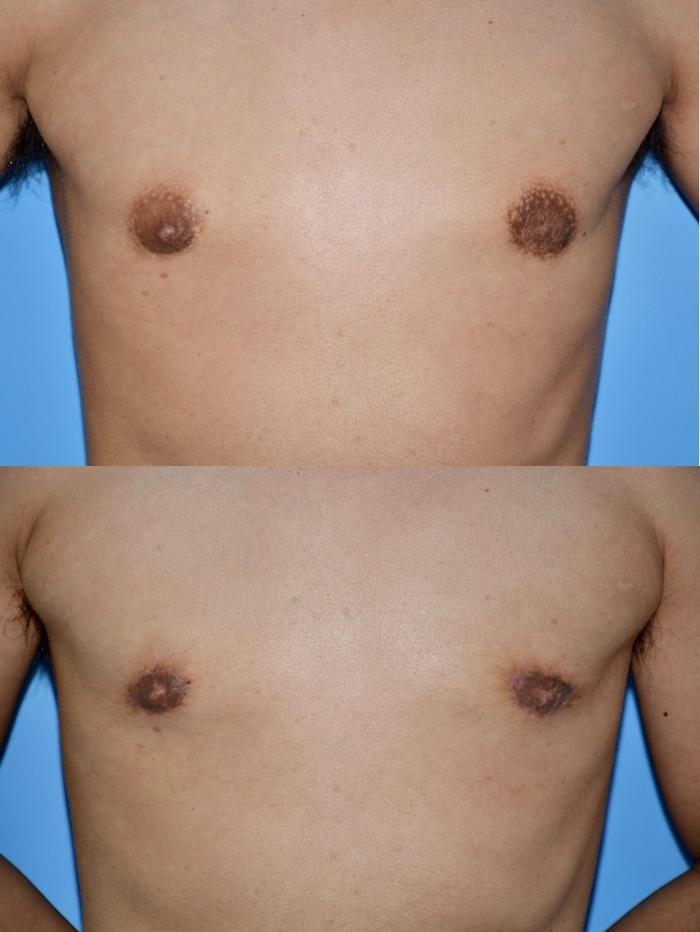 乳輪縮小術 術後1ヶ月 拡大