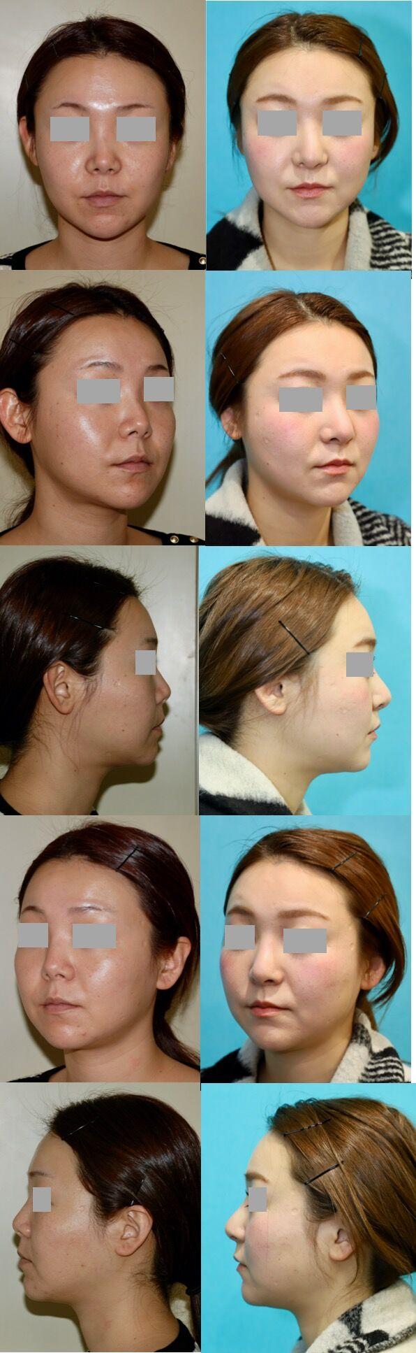 鼻中隔延長術、隆鼻術 術後5ヶ月