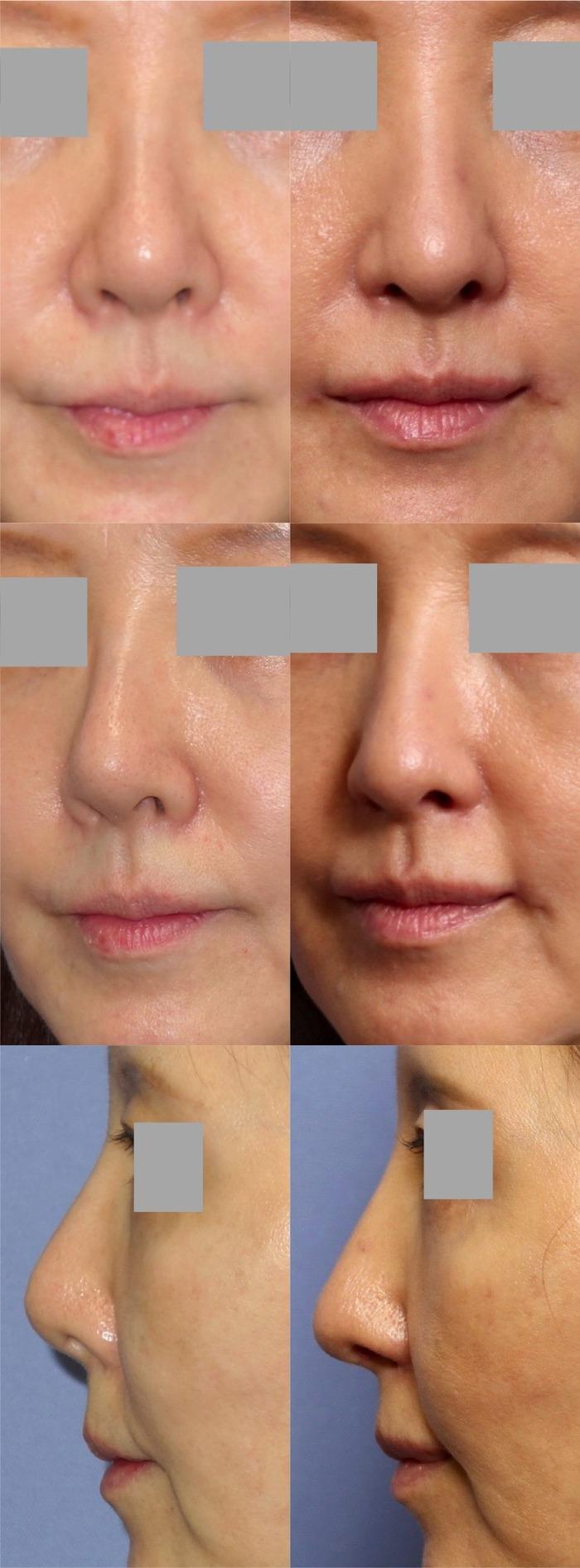 鼻中隔延長術 隆鼻術 鼻翼挙上術 口角挙上術 術後2ヶ月 拡大像