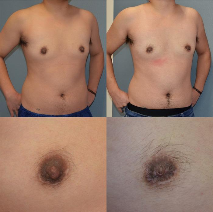 乳頭縮小術y