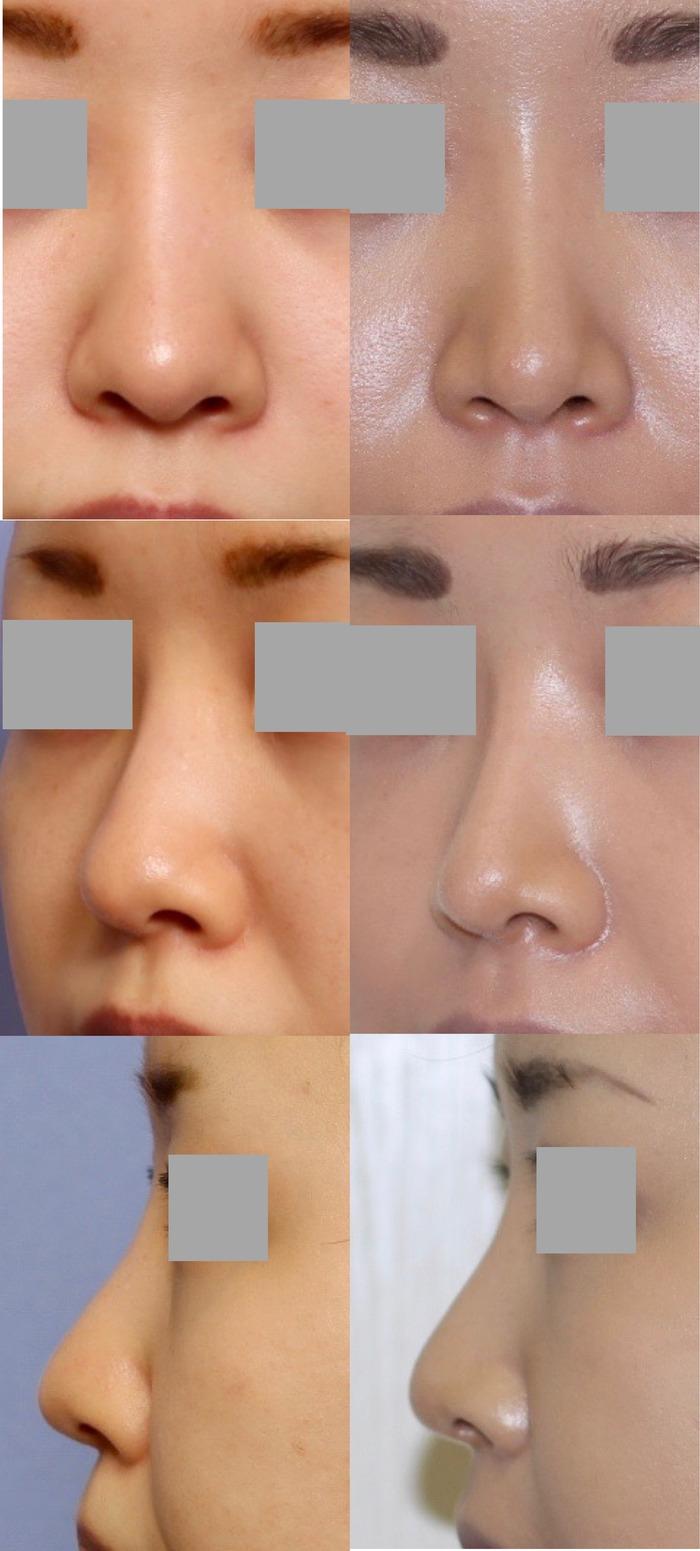 鼻尖縮小 鼻プロテーゼ位置修正 拡大